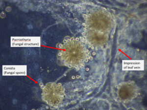 Tape mount of Tubakia fungal structures (pycniothyria) and conidia from leaf surface.